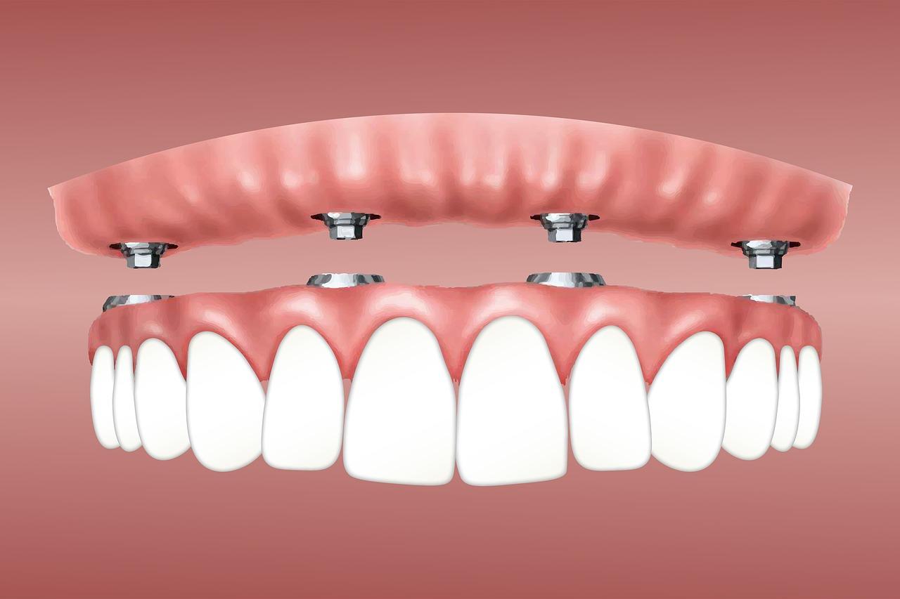 Jakie protezy zębowe wybrać: ruchome czy stałe?
